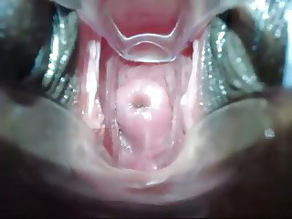 Shallow cervix penetration
