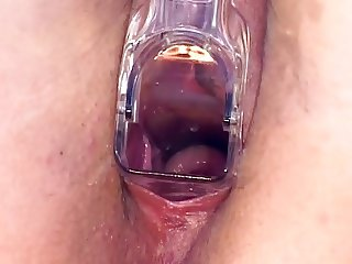 young cervix through a plastic speculum