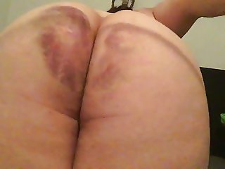 The cane... still not bruised enough