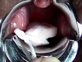 MiracleSatchin Japanese TAMPON insertion my Cervix