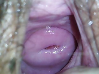 A Beautiful Cervix