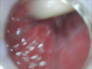 anal endoscope ass play from inside
