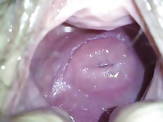 my japanese girlfend's cute cervix in huge hole