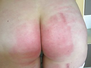 Belt wife severe red but